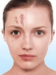 corrector makeup scar hiding makeup