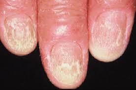 nail dystrophy hyponychia and anonychia