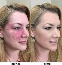 how to hide freckles makeup saubhaya