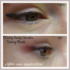 tattoo removal by permanent makeup