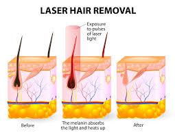 laser hair removal ponte vedra vein