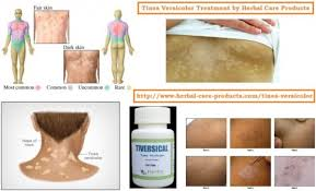natural remes for tinea versicolor