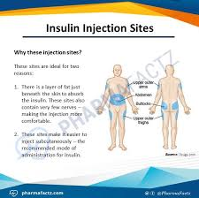 Pin by Priscilla Simmons-Huggins on Teaching resources | Insulin injection  sites, Nurse teaching, Medical symptoms