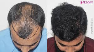 hair transplant results after surgery