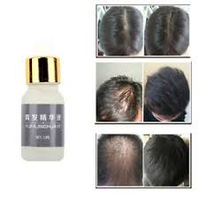 organic hair growth essence loss oil