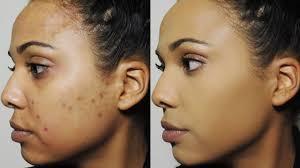 how i cover dark spots acne scars