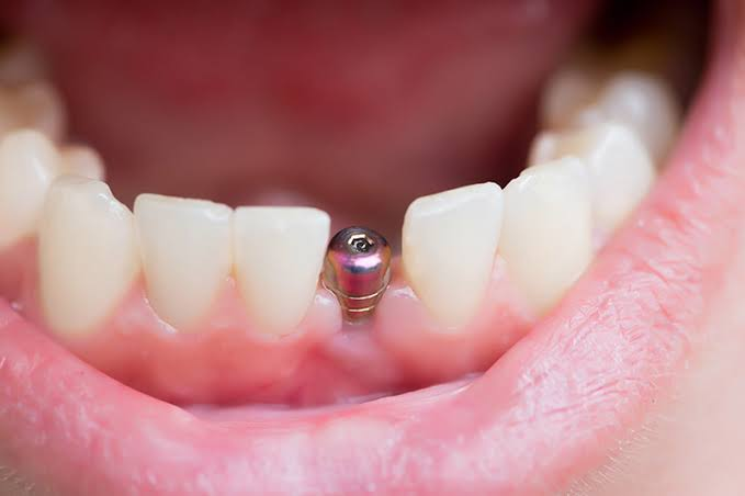Image result for dental implant treatment""