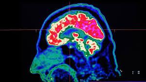 cyborgs elon musk and the new era of neuroscience financial times