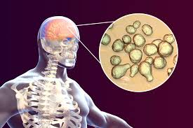 Cryptococcal Meningitis May Be Linked With Higher Mortality in ...