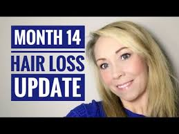 gastric byp month 14 hair loss