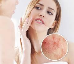 peri dermais rash around the mouth