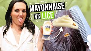 removing lice with mayonnaise watch