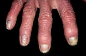 remendations for nail psoriasis in