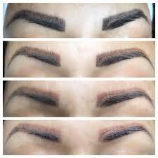 permanent makeup removal laser london