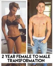 Image result for Young trans Women breasts removed to become a man