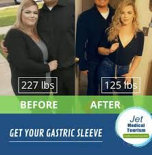 gastric sleeve before and after stories