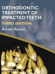 Amazon | Orthodontic Treatment of Impacted Teeth | Becker, Adrian |  Dentistry