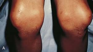 nail dysplasia an overview
