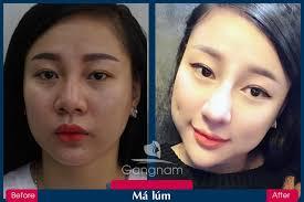 E-Voucher] - Tạo Má Lúm tại Thẩm mỹ viện Gangnam - HCM, Đồng Nai ...
