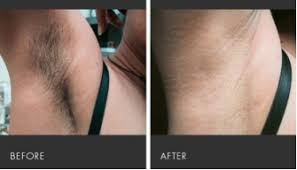 laser hair removal skin tightening