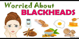 home remes to get rid of blackheads