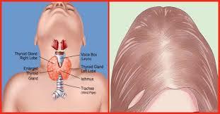 bat thyroid induced hair loss naturally