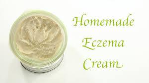 homemade eczema cream you