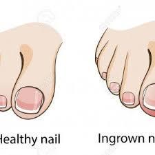 painful ingrown toenail