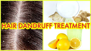 how to clear dandruff itchy scalp