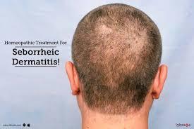 homeopathic treatment for seborrheic