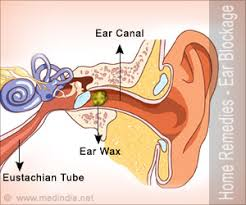 home remes for ear blockage