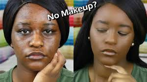 conceal hyperpigmentation with makeup