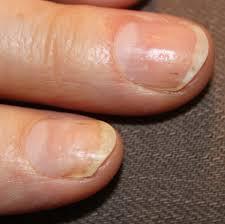 treating psoriatic nails