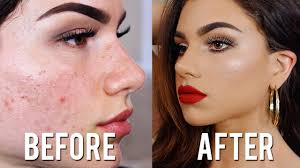 how to cover acne s with makeup