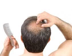losing hair during coronavirus pandemic