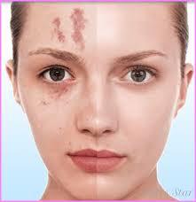makeup for melasma star styles