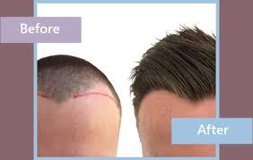 hair transplant treatment hair