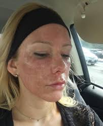 before and after co2 laser skin resurfacing
