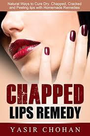 chapped lips chapped lips remedy