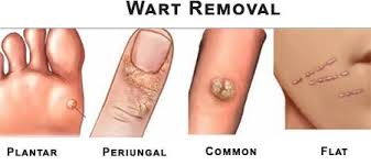 wart removal specialist 2018 top