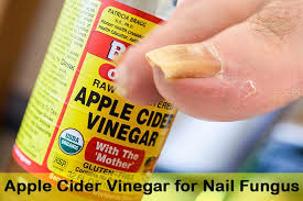 home remes for nail fungus