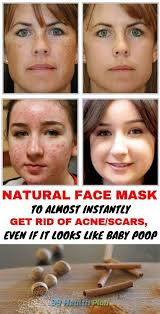 Pin on How To Get Rid Of Acne Scars