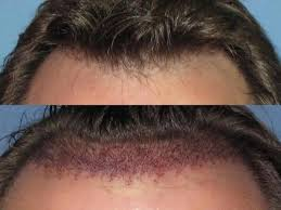 wig non surgical hair transplant