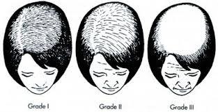 women s hair loss carlsbad s hair
