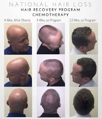 accelerate hair growth after chemo