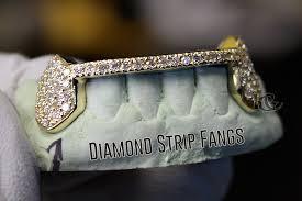 custom gold grillz gold teeth