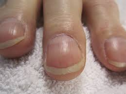 nail clubbing definition causes and