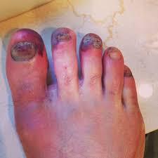 chronic toenail injuries in runners