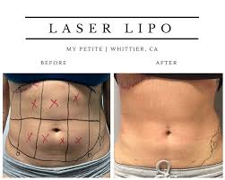 laser fat removal laser lipo your
