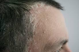 scalp psoriasis symptoms causes and